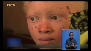 Namibia Albino Association wants to create more awareness among Namibians-NBC
