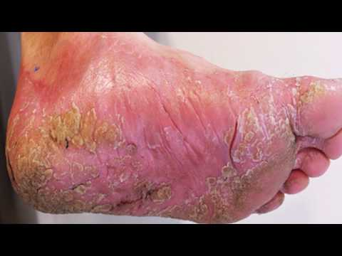 Athlete's Foot Treatment, Cures and Identification