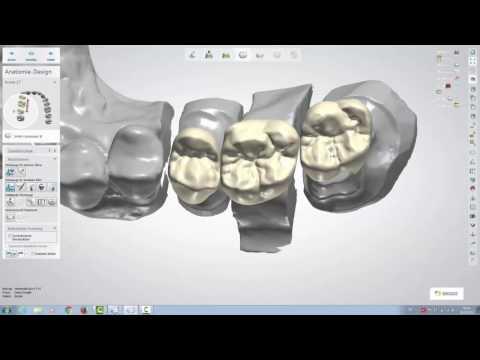 Design einer dreigliedrigen Brücke mit dem 3Shape Dental Designer 16.1.0 (für Fortgeschrittene)