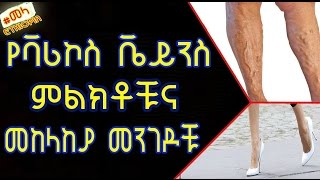 What are Varicose Veins?What Are The Symptoms, Causes & Treatments? - ቫሪኮስ ቬይን ምንድን ነው? የሚከሰትበት ምክንያ