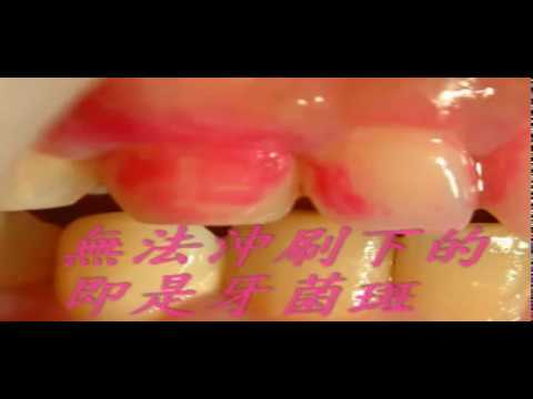 牙菌斑顯示劑操作過程 - YouTube