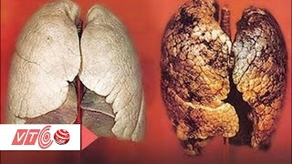 Ung thư phổi: Đừng trị bệnh khi quá muộn  | VTC