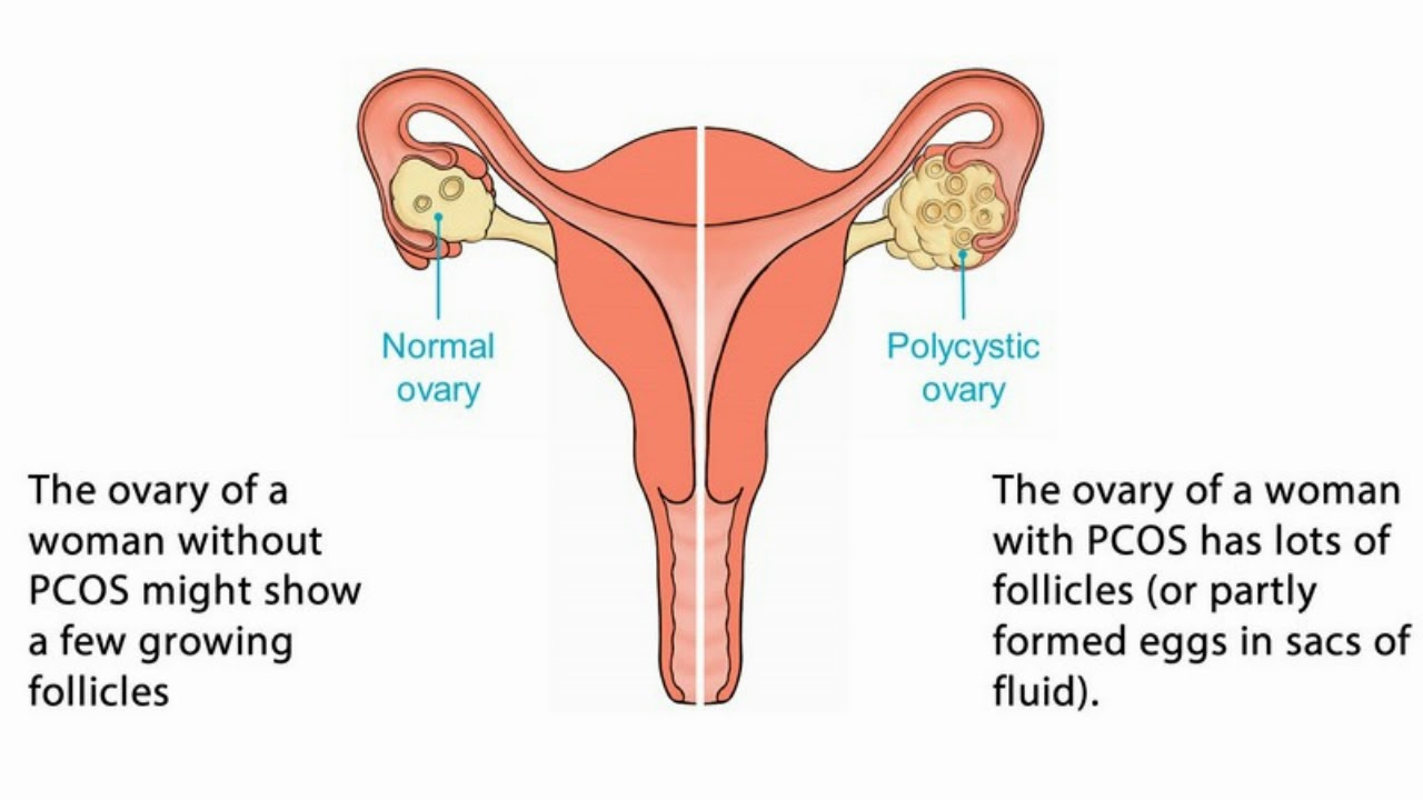 Difference Between Ovarian Cyst And Ovarian Cancer Youtube