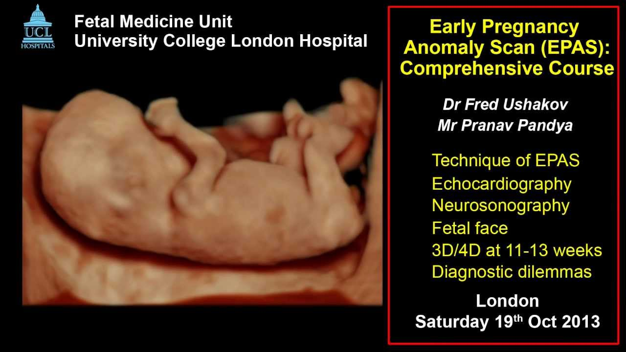 Anomaly Scan at 11-13 weeks: ISUOG 2013 approved course - YouTube