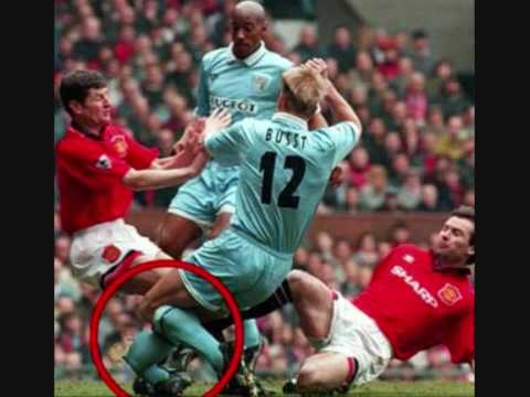 10 really bad football leg breaks - YouTube