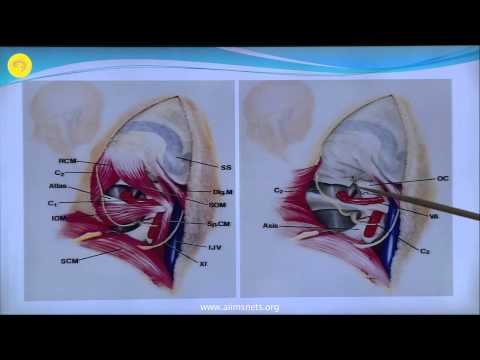 Far-lateral approach to the Foramen magnum
