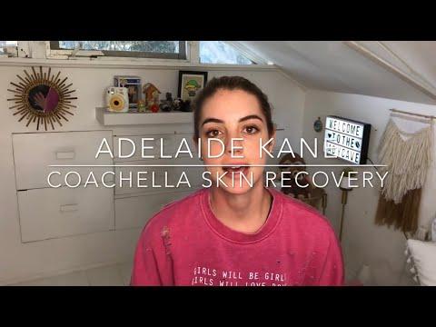 Coachella Skin Recovery  Adelaide Kane