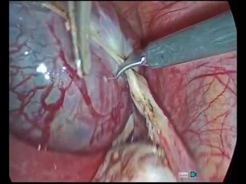 Маточная и внематочная беременность после ЭКО.Удаление маточной трубы.