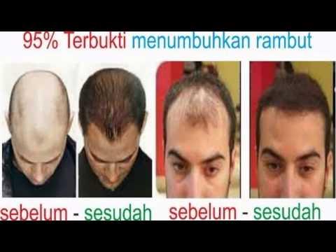 +62 851 002 2229, Cara Meluruskan Rambut Yang Rosak, Cara Memulihkan Rambut Yang Rosak from YouTube · Duration:  1 minutes 27 seconds
