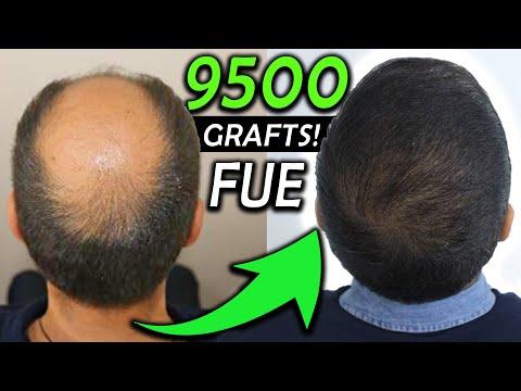 Kay´s 9500 Graft FUE Hair Transplant Transformation!!! NW 6