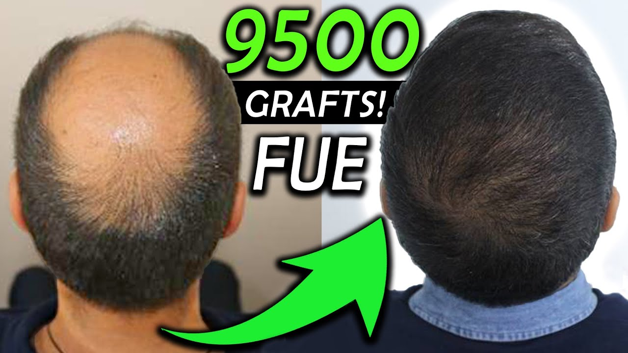 Kay´s 9500 Graft FUE Hair Transplant Transformation!!! NW 6