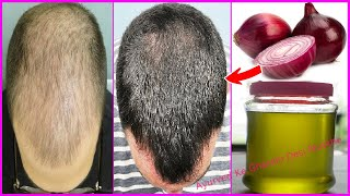घर पर ही बनाये ये जादुई तेल जो गंजे सिर पर फिर से उगा सकता है बाल Homemade Onion Oil 100% Effective
