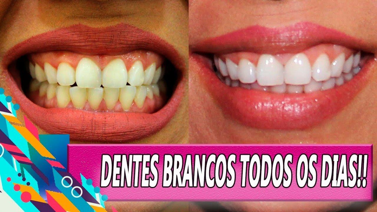 Dentes Brancos Em 2 Minutos Receita Inusitada Veda Dia 14