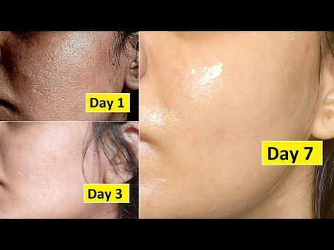 Skin Repair | Close Large OPEN PORES in 1 week, Remove Dark Spots, Anti Aging