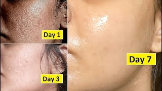 Skin Repair | Close Large OPEN PORES in 1 week, Remove Dark Spots, Anti Aging
