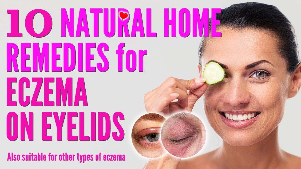 10 Best Natural Home Remedies for Eczema on Eyelids | how to treat eczema eyelids