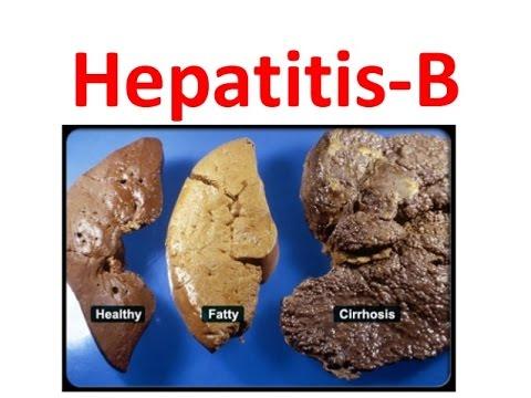 Remedios para la hepatitis a b c tratamiento en casa for La b b