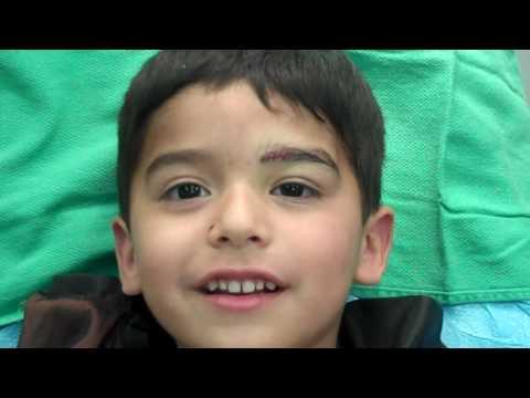 FUE Eyebrow Transplant 5 yr old Part 2 by Dr. Jeffrey Epstein