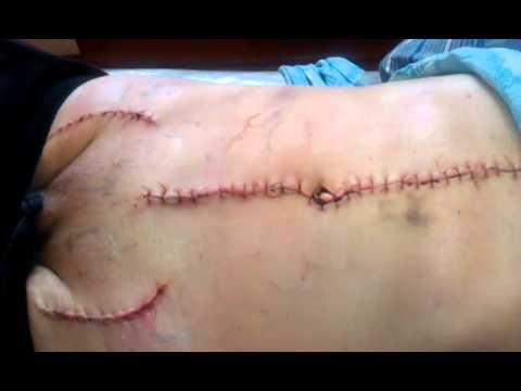 Аневризма аорты, после операции - YouTube