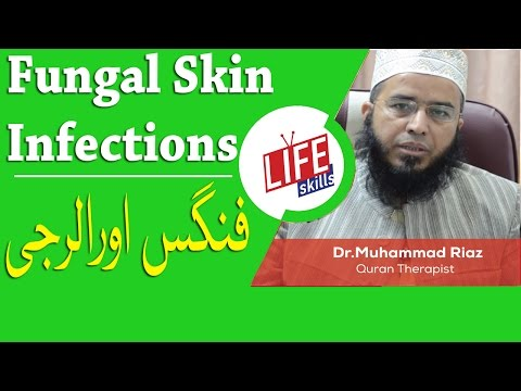 Fungal skin infections Treatment with Quran Therapy | Life Skills TV