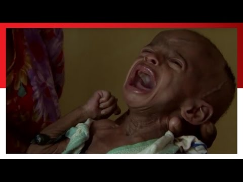 THIS is Hunger  | Save the Children