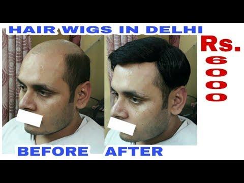 Hair bonding in delhi  . Hair bonding shop . Hair bonding cost  price rs 5000  www.rituhairwigs.com