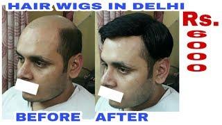 rs 6000  Hair bonding in delhi . Hair bonding shop in delhi .Hair bonding price in delhi  9958962040