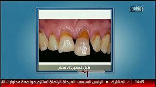 الدكتور   ماذا نفعل فى حالة فقدان الأسنان الكامل مع دكتور شادى على حسين