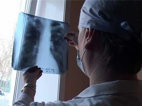«Белая ромашка» - символ борьбы с туберкулезом. ГУО