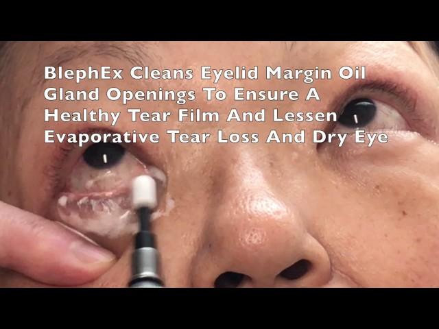 Colorado Springs BlephEx Eyelid Treatment For Dry Eyes Blepharitis By Dr. John Burroughs