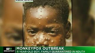 Monkeypox Outbreak : 11 year-old boy, family quarantined in NDUTH