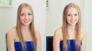видео Выпадают волосы? Луковая маска от выпадения волос (яйцо, лук)