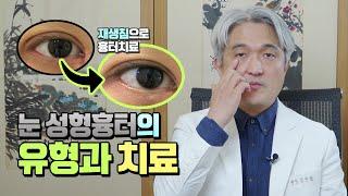 앞트임, 쌍꺼풀 눈 성형 수술로 생긴 흉터 치료
