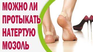 Кровавая мозоль, как лечить кровяные мозоли на ногах