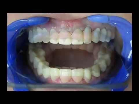 Cuanto cuesta un implante dental de una muela guatemala