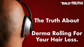 The Truth About Derma Rolling -The Bald Truth, May 3rd, 2019