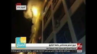 هذا الصباح| الحماية المدنية تسيطر على حريق بمستشفى جامعة الزقازيق