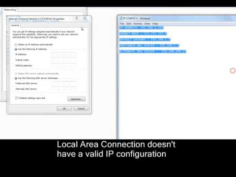 Local Area Connection doesn