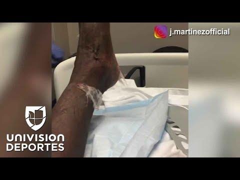 Jackson Martínez mostró impactantes imágenes de cómo quedó su tobillo tras otra operación