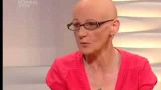 Alopecia on Irish Morning Show - Liz Shiel
