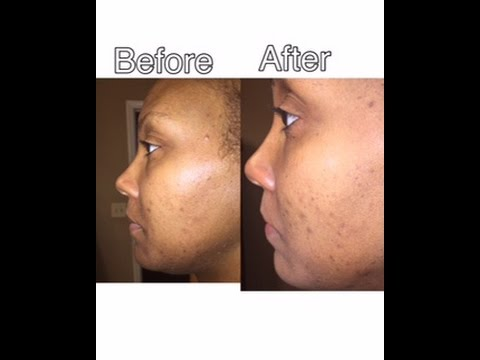 Review Mary Kay Clear Proof Acne Treatment System Youtube