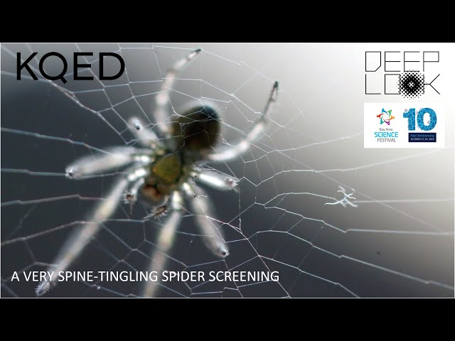 A Very Spine-Tingling Spider Screening with DEEP LOOK