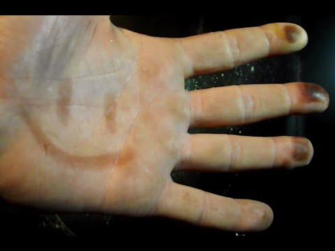 Removing Silver Nitrate Stains