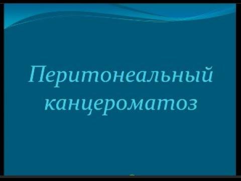 Канцероматоз брыжейки и сальника/Canceromatosis of the mesentery and epiploon