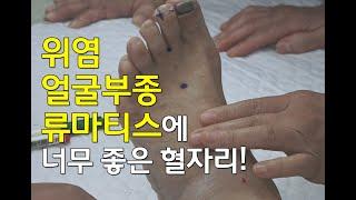 [김효열 교수의 재미있는 혈자리 공부] 위염, 얼굴부종, 류마티스 관절염 등에 좋은 혈자리(족양명위경)