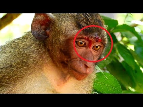 Acheb Save Orphan Jessie! Adorable Jessie break on eyebrow cos fighting of monkey,Feel cry cos pity