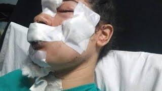 إسراء عماد ضحية اعتداء زوجها