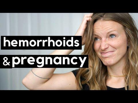 Hemorrhoids and Pregnancy...