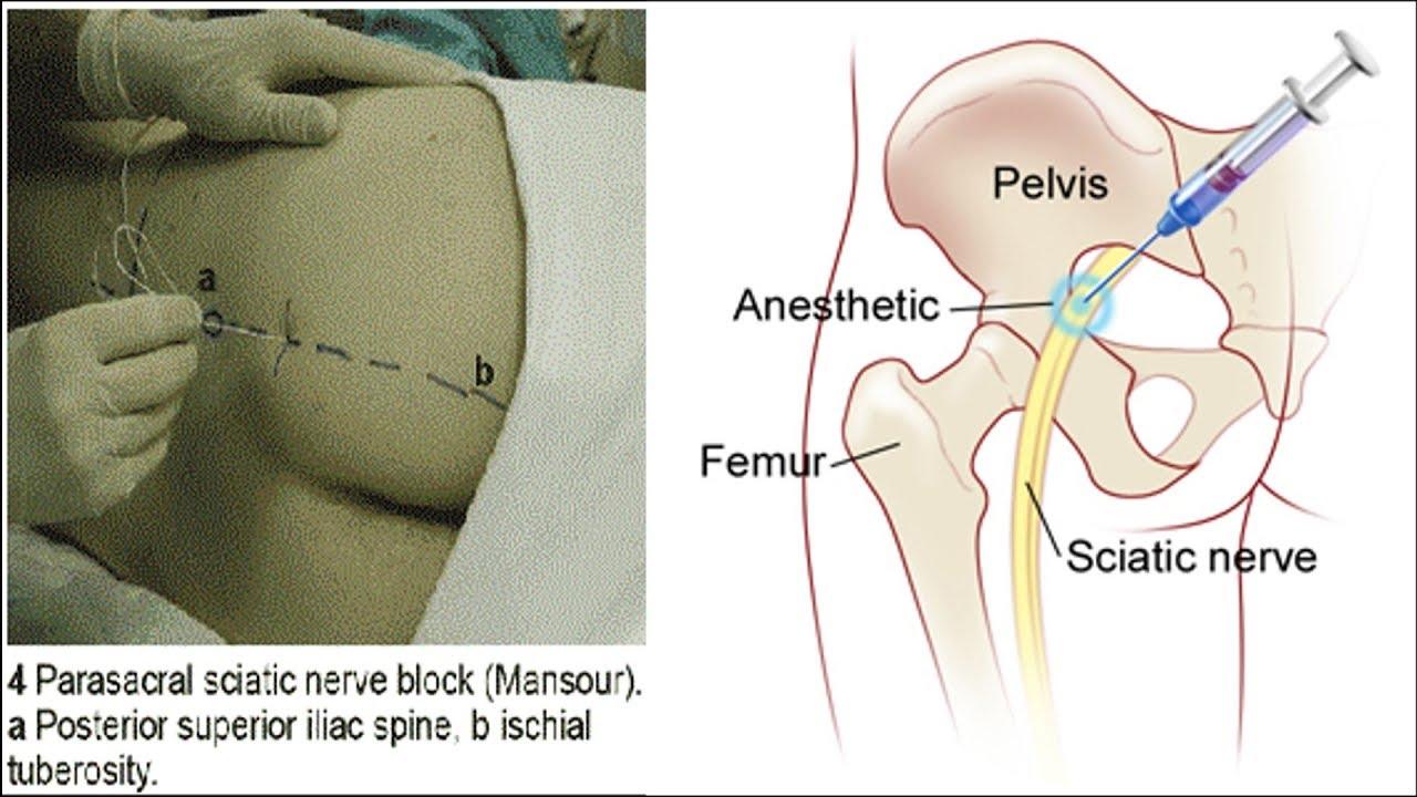 Блокада седалищного нерва   Как делается   Sciatic Nerve Block ...