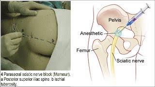 блокада седалищного нерва  Как делается  Sciatic Nerve Block